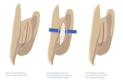 Abstehende Ohren - Schnittfreie Korrektur ist schonender
